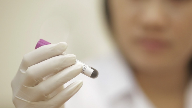 Thailand: Testing for HIV Offers Peace of Mind, Allows Early Detection and Treatment